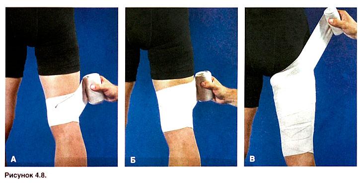 Растяжение мышц бедра - SportWiki энциклопедия