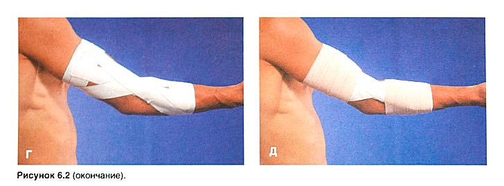 как лечит ушиб локтевого сустава