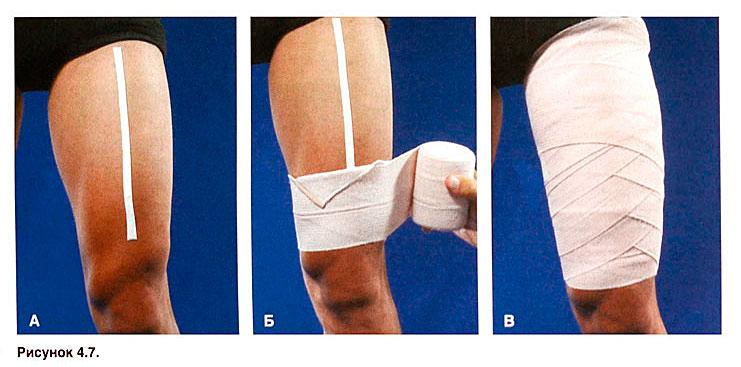 Почему волокна кожи — эластин и коллаген — разрываются?