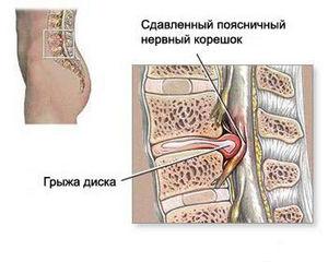 Таблетки Ацикловир - акри от генитального (полового) и